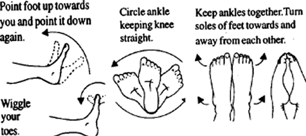 ankle sprain treatment, ankle injury rehab, treating sprained ankle, soccer ankle recovery