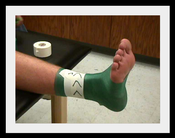 a brief introduction to how to tape an ankle if you have a sport injury The course is designed as an introduction to taping safety considerations relating to taping as well as the theory of athletic taping will the tape jobs you.