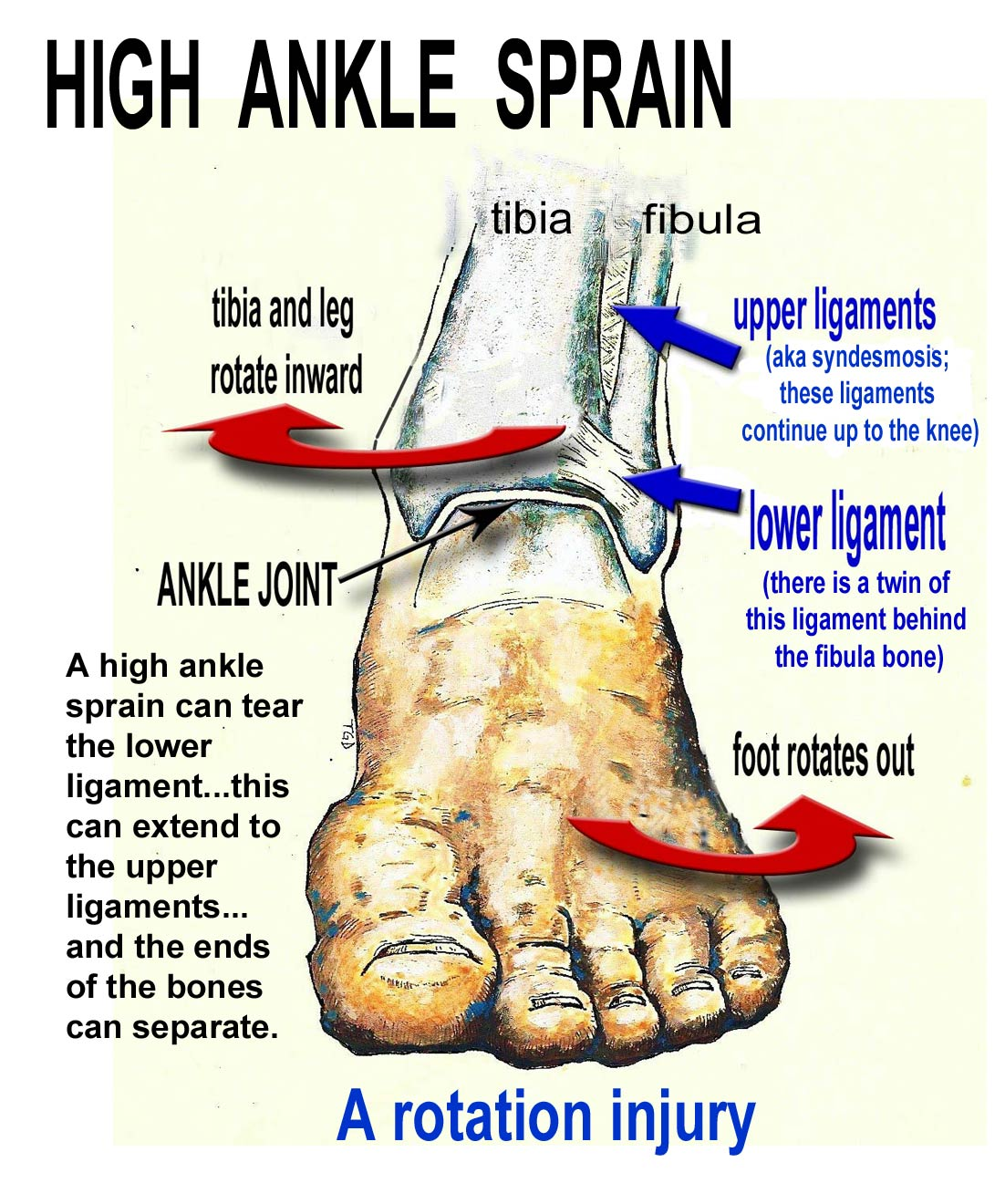 high ankle sprain, high injury ankle, upper ankle injury, treatment, symptoms ankle high sprain
