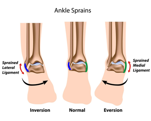 ankle injury, ankle sprain, sprained ankle, twisted ankle, soccer injury ankle