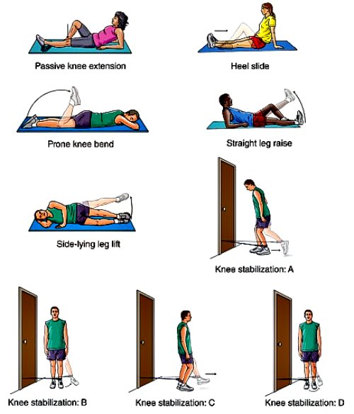 pcl injury recovery, pcl knee rehab, pcl rehab exercises, pcl knee injury rehab, pcl knee exercises